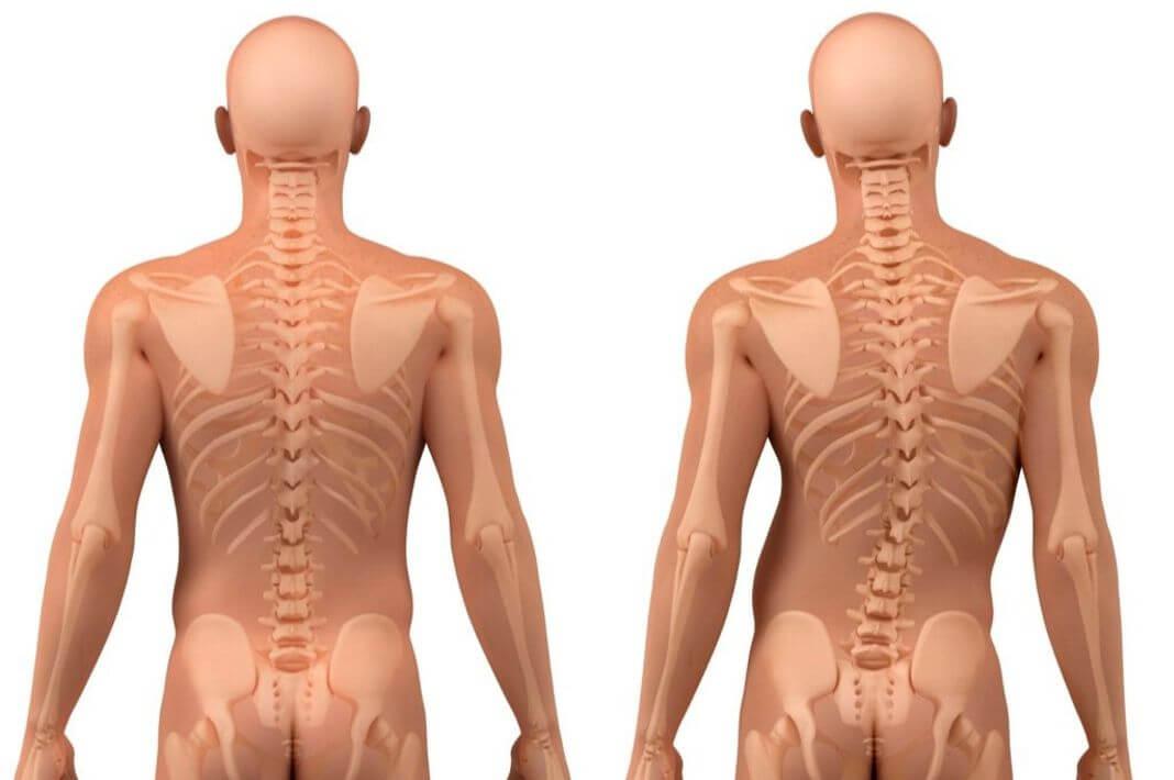 Исправляем асимметрию дельтовидных и трапециевидных мышц