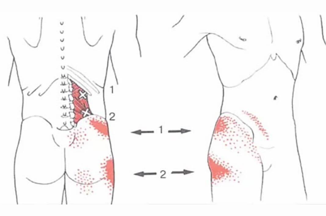 Карта точек напряжения и болей в теле