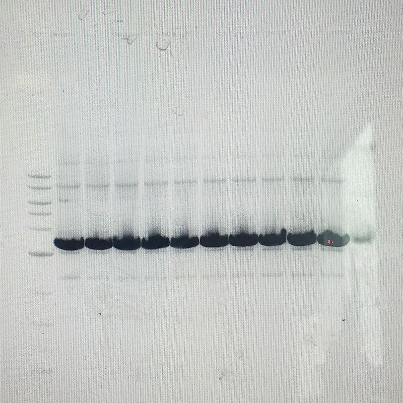 Artwork – Needle in a Haystack (Agarose Gel), 2019