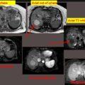 Dysplastic liver nodule thumbnail