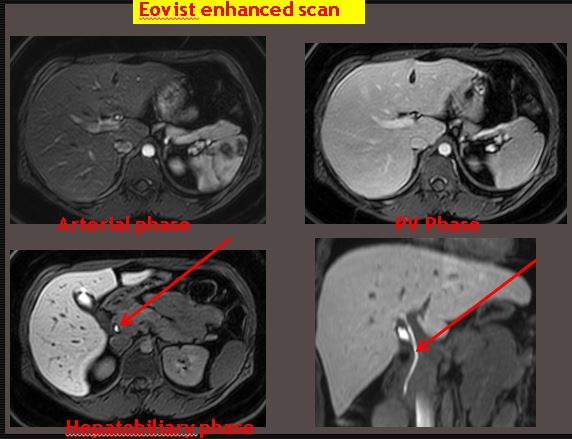 Eovist enhanced scan