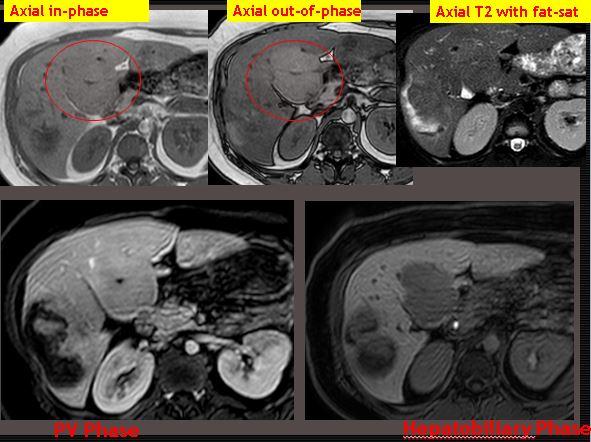 Eovist MRI of biopsy proved hepatic adenoma