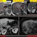 Eovist MRI of biopsy proved hepatic adenoma thumbnail