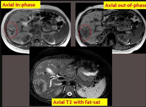 MRI of biopsy proven hepatic adenoma