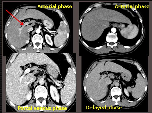 Example of various phases of liver CT