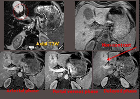 Hemangioma - MRI