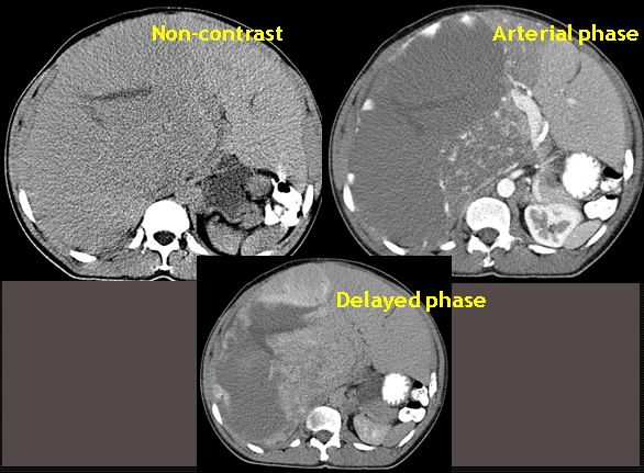 Massive hemangioma with kasabach-merritt syndrome