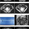 CT Findings of Foreign Body Reaction to a Retained Endoloop Ligature Plastic Tube Mimicking Acute Appendicitis: A Case Report. thumbnail