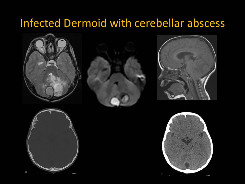 Infected Dermoid Cyst