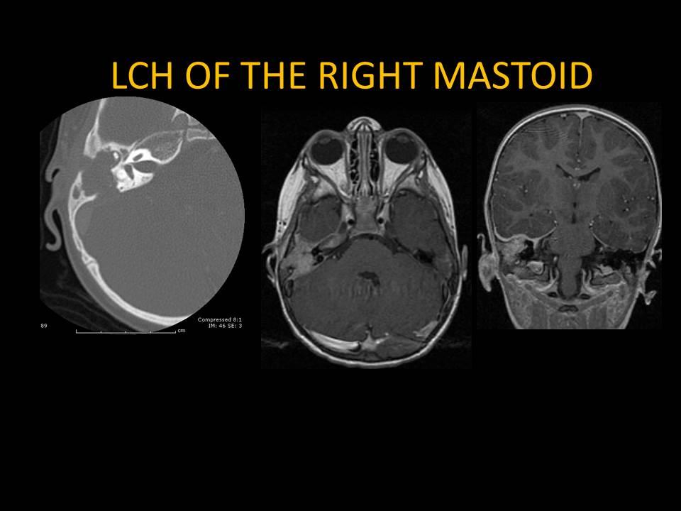 Langerhans Cell Histiocytosis of right mastoid