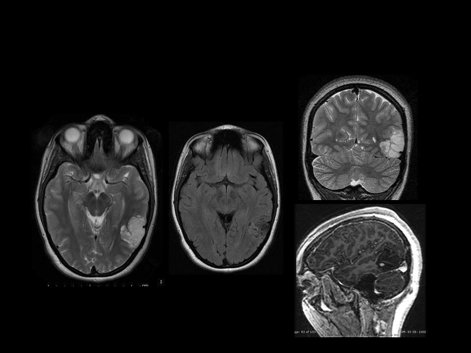 Left Temporal Dysembryoplastic Neuroepithelial Tumor