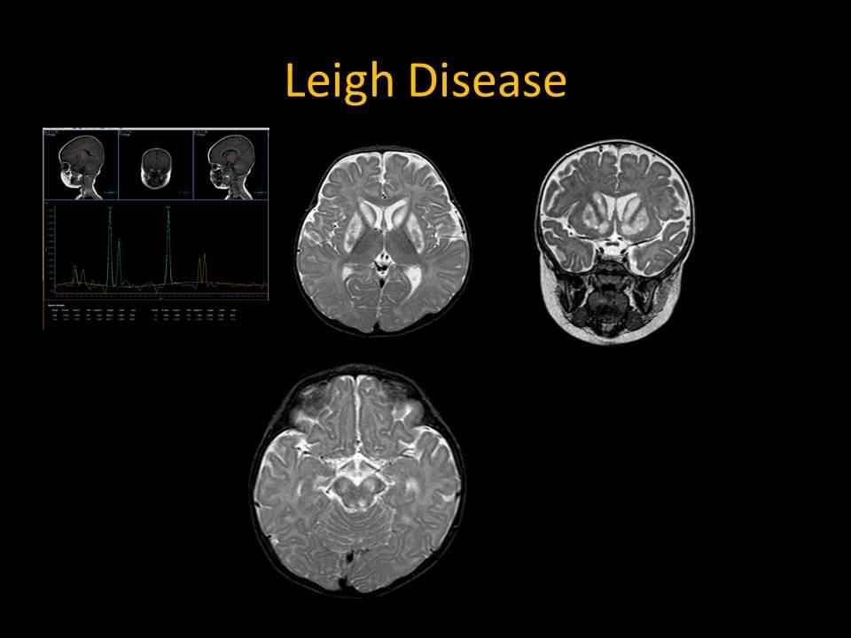 Leigh Disease