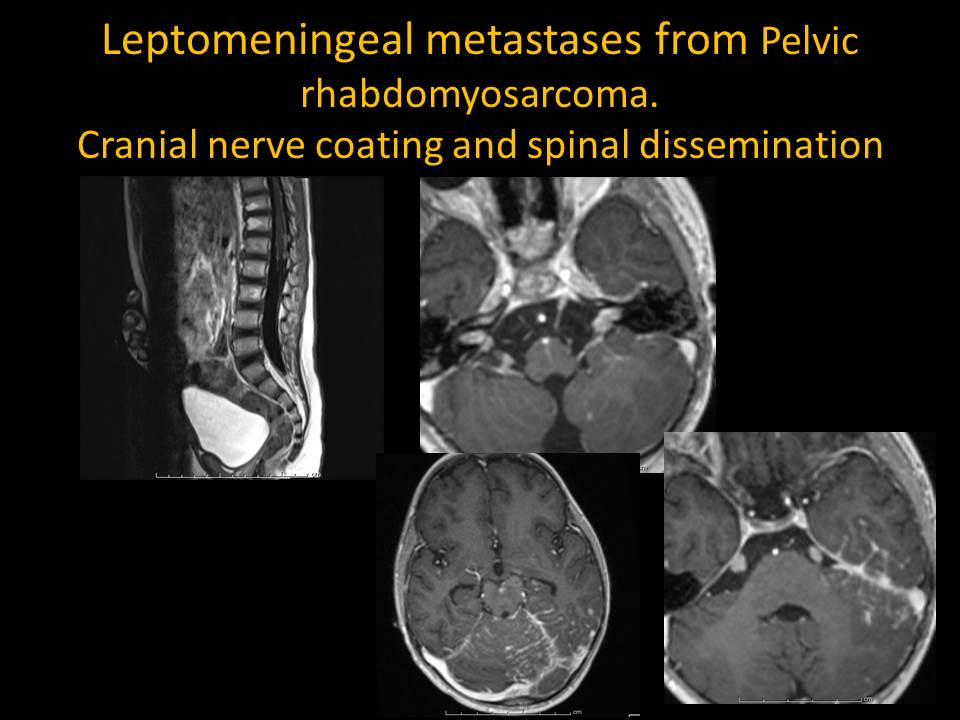 Leptomeningeal Metastases from Pelvic Rhabdomyosarcoma