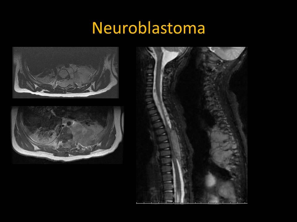 Neuroblastoma metastases to spine