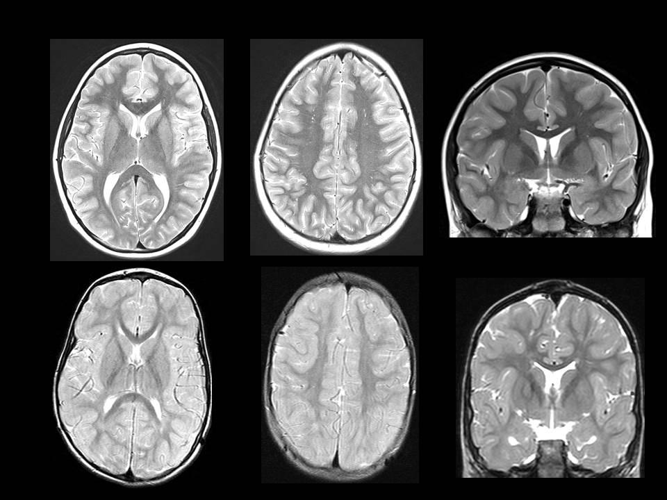 Normal vs Abnormal Myelination