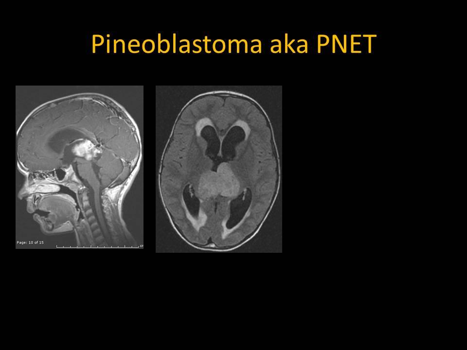 Pineoblastoma