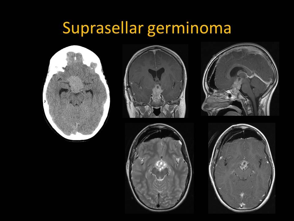 Suprasellar Germinoma