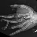 Comminuted open left hand fractures thumbnail