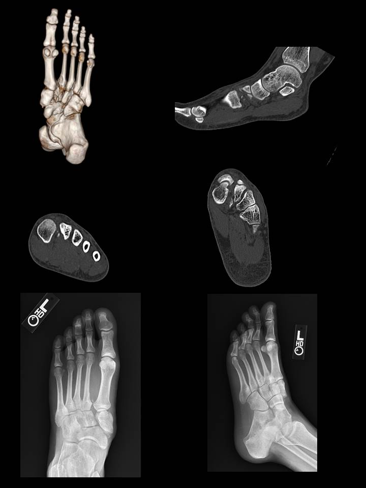 Plain Radiograph and CT of Lisfranc Fracture