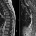 Leptomeningeal Lymphoma thumbnail