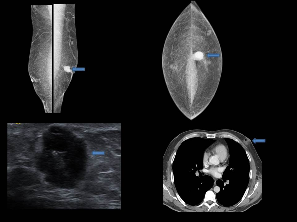 Biopsy proven male breast ductal carcinoma