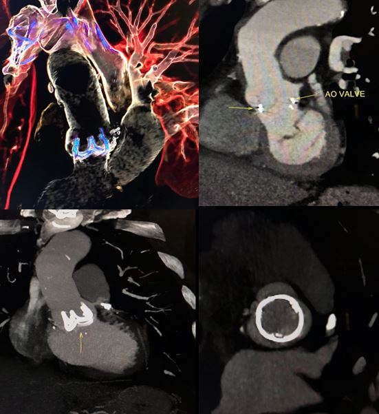 Normal appearance of a bioprosthetic valve in the aorta in CTA