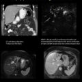 CT and MRI of biopsy proven Cholangiocarcinoma thumbnail