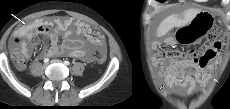 CT of omental caking due to metastatic adenocarcinoma