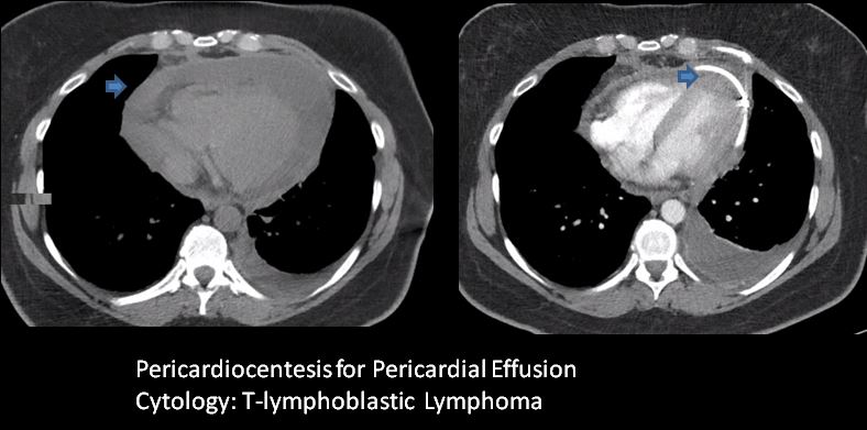 CT of pericardial effusion due to lymphoma