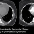 CT of pericardial effusion due to lymphoma thumbnail