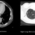 Primary Lung Cancer and Prostate Cancer Metastases in same patient thumbnail
