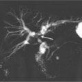 MRCP of a classical Klatskin's tumor thumbnail