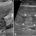 Examples of intrahepatic cholangiocarcinoma (iCCA) on ultrasound in two different patients thumbnail