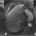 Cirrhosis of liver with iCCA thumbnail