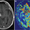 Axial post-contrast T1WI and cerebral blood volume color map from perfusion exam thumbnail