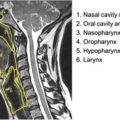 Division of the anatomical and functional units of the upper aerodigestive tract thumbnail