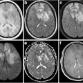 Axial T1WI, T2WI and T2-weighted-FLAIR of Lymphomatosis cerebri thumbnail