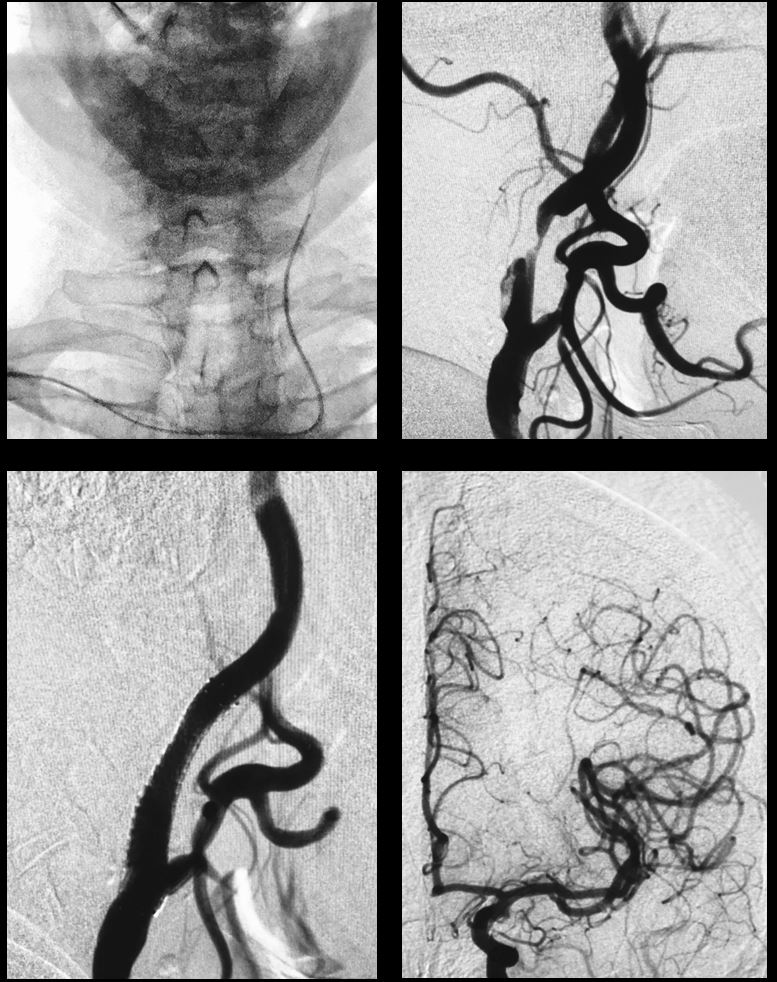 Techniques of Carotid Artery Stenting