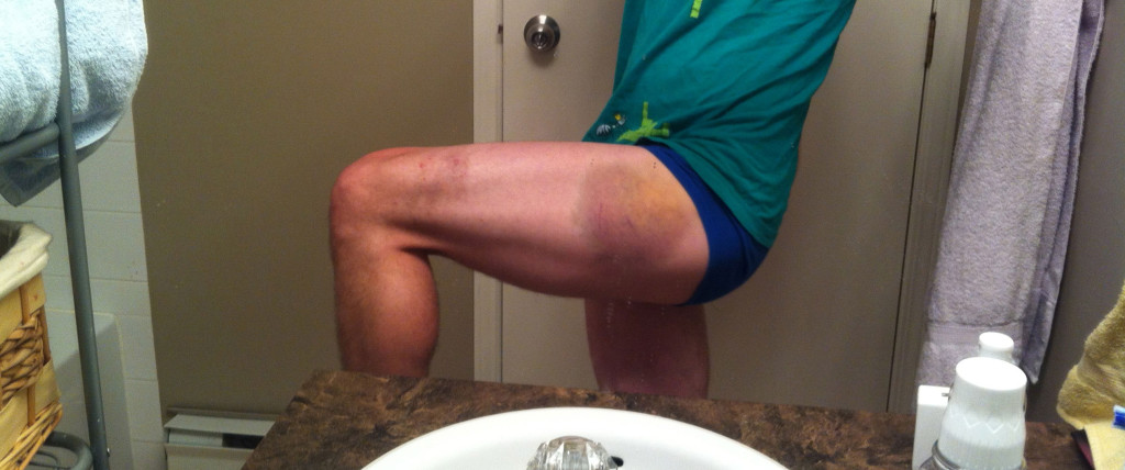 blog-running-bruise