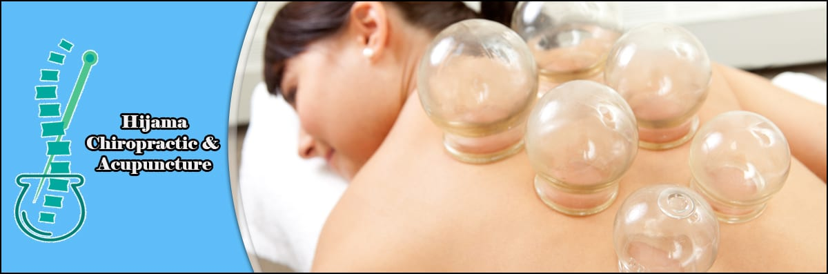 Hijama Chiropractic & Acupuncture Does Cupping Chiropractor Services in Orlando, FL