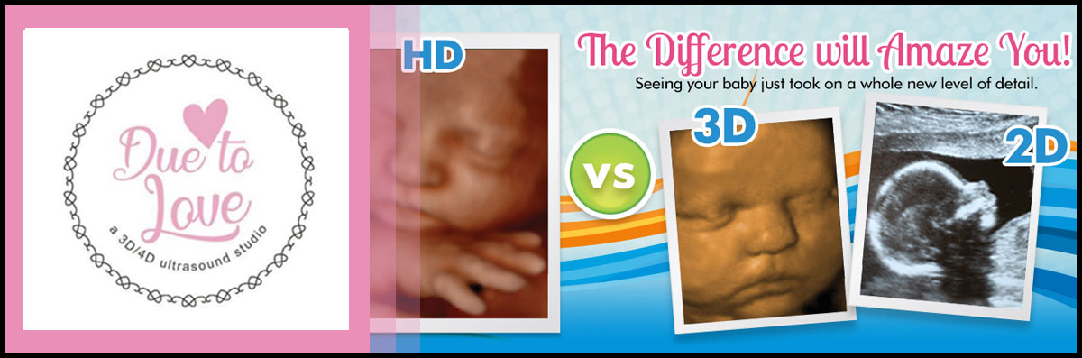Due To Love Offers Ultrasounds in Pearland, TX