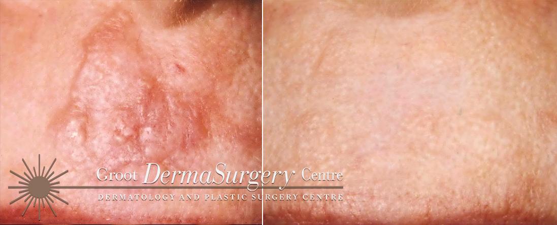 Dermatology & Cosmetic Surgery