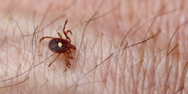 tick crawling on a persons arm
