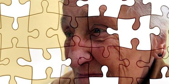 Alzheimer's Basics