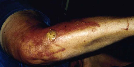 Skin damage from contact with giant hogweed  (Heracleum mantegazzianum). Burn caused by plant (left leg, person lying down).