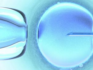Conception: In-vitro fertilization is one of the procedures that needs to be supported.