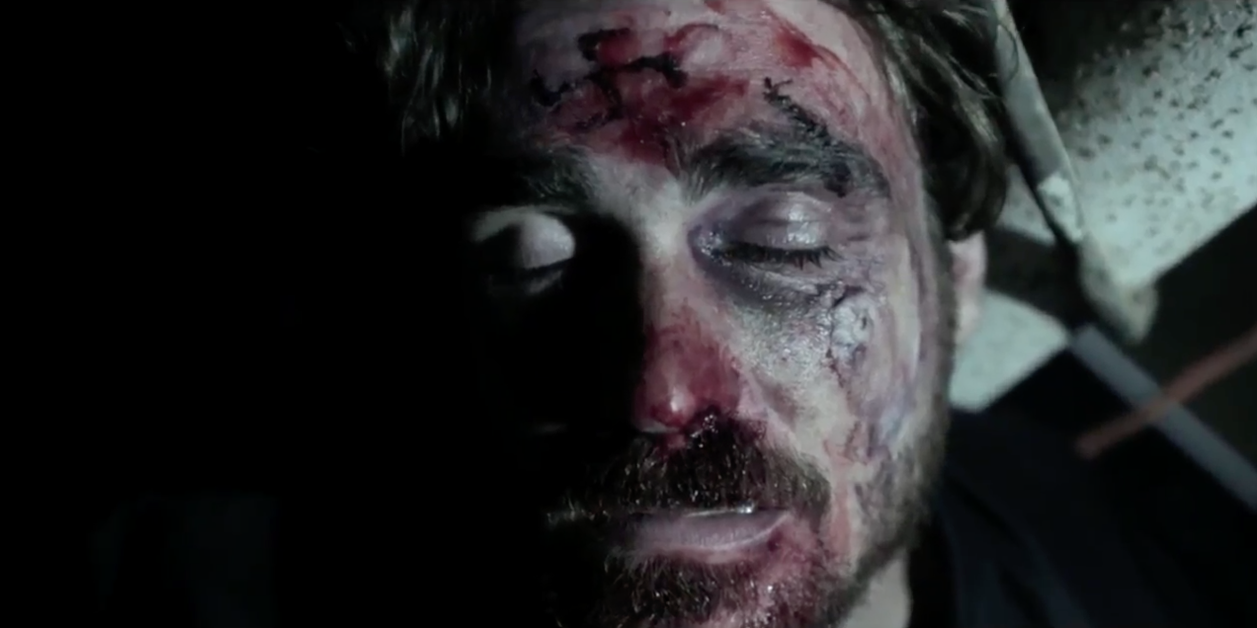 The music video shows anti-fascist activists tattooing a swastika onto a neo-Nazi's forehead.