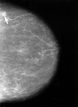 A form of breast cancer depicted on a mammogram.