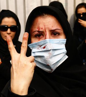 Bloody but Unbowed: An injured Iranian opposition supporter flashes a V-sign during clashes with security forces in Tehran on December 27. Thirteen people were reported killed during recent demonstrations.