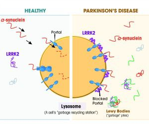 In Parkinson?s: Mutations in the LRRK2 gene produce impaired proteins that block portals to the cell?s garbage recycling station or lysosome. When these portals are blocked, large amounts of the protein alpha-synuclein pile up, clumping into brain-damaging Lewy bodies.